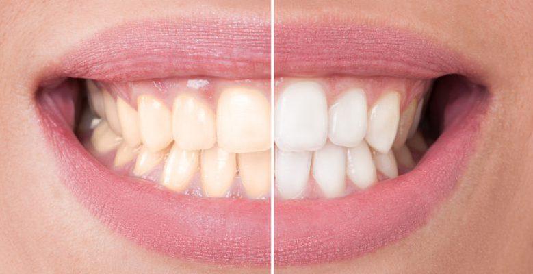 Bleaching der Zähne